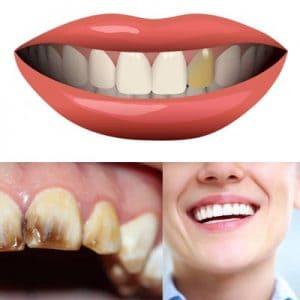 Perché i denti si scuriscono e cosa fare?
