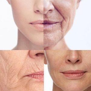 Come evitare le rughe sulle labbra?