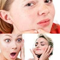 Acne - cause e metodi di trattamento.